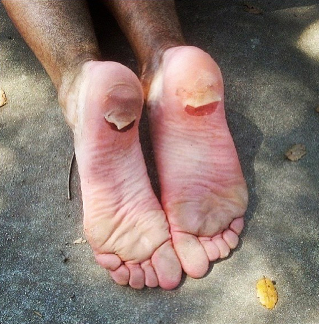 Blisters from running